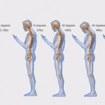 Text neck Torbay Teign Chiropractic Natural Health Centre